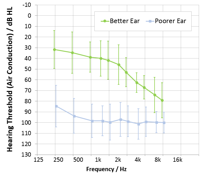 To assess the effectiveness and feasibility of Narrow Directionality with Pure Nx instruments and the new Silk Nx instruments for listeners with SSD, a clinical study with 12 participants was conducted.  The participants had profound hearing loss on one side, and slight to moderate hearing loss on the other side. The average audiogram for the patients is shown in Figure 1. Eight male and four female participants were tested, with ages ranging from 63 to 91 years; mean age was 75 years. BiCROS fittings were tested using Signia CROS Pure 312 Nx and Silk Nx CROS hearing aids. Coupling to the ear was accomplished by using standard Signia closed Click Sleeves. The hearing instruments were fitted to the individual audiogram of the patient using the NxFit fitting formula for experienced hearing aid users. All sound processing features were left at the default settings. The results of the BiCROS fittings were compared to results obtained with a conventional monaural fitting on the better ear.